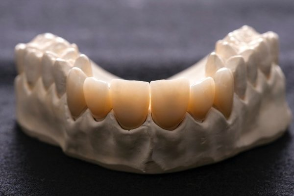 ZIRKODENT®  Multilayer  600 MPa